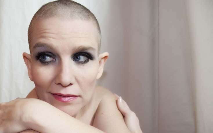 Выпадение волос после гормонального лечения
